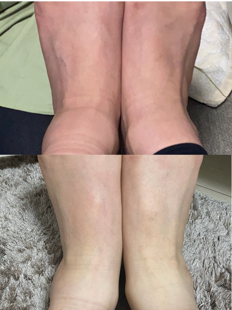 捻挫が2ヶ月たっても治りません。画像あり ちょうど2ヶ月前に階段で足を滑らせ、左足首を捻挫しました。 他にも右の膝と足の甲を痛めました。 落ちた日は用事があり、どうしても外せなかったためかなり激...
