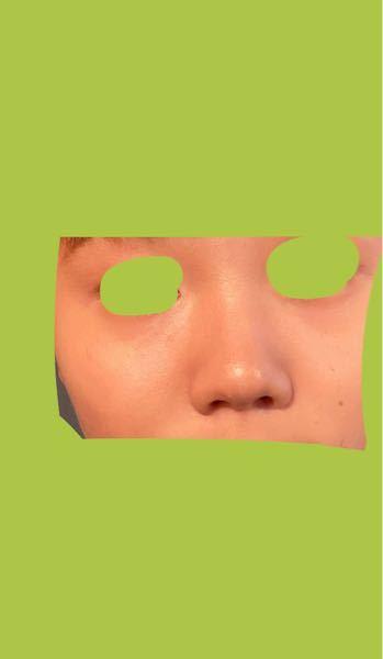 芸能人とかでこういう鼻の人いますか? 鼻中短いし少し広くて鼻がコンプレックスですが、少しでも前向きに考えたいので!