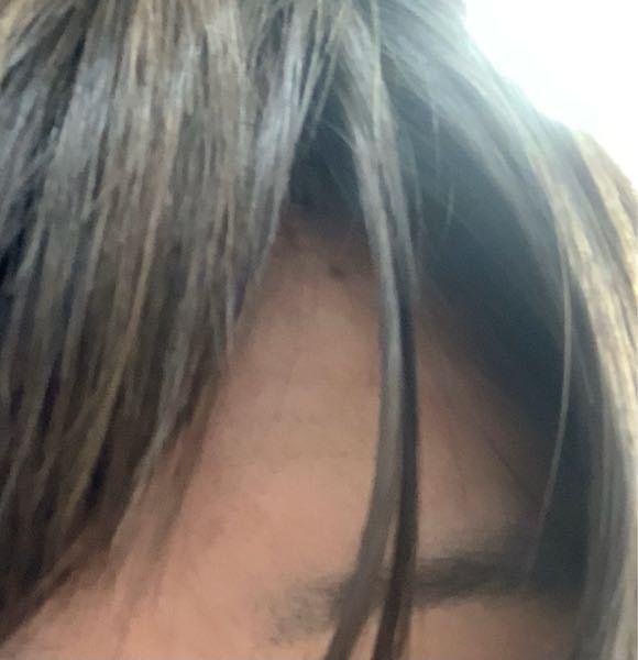 毎回こんな感じで前髪が割れてしまいます 左右どっちに流してもこの位置をキープしてます 対処法はありますでしょうか?