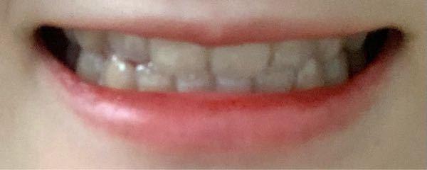 元々唇が薄いのですが、笑った時に更に上唇が内側に引っ張られ?て薄くなるのがすごくコンプレックスです。。 もう少し上唇を見せる方法はありますか? また、ボトックス注射をした場合、多少はましになりますか?