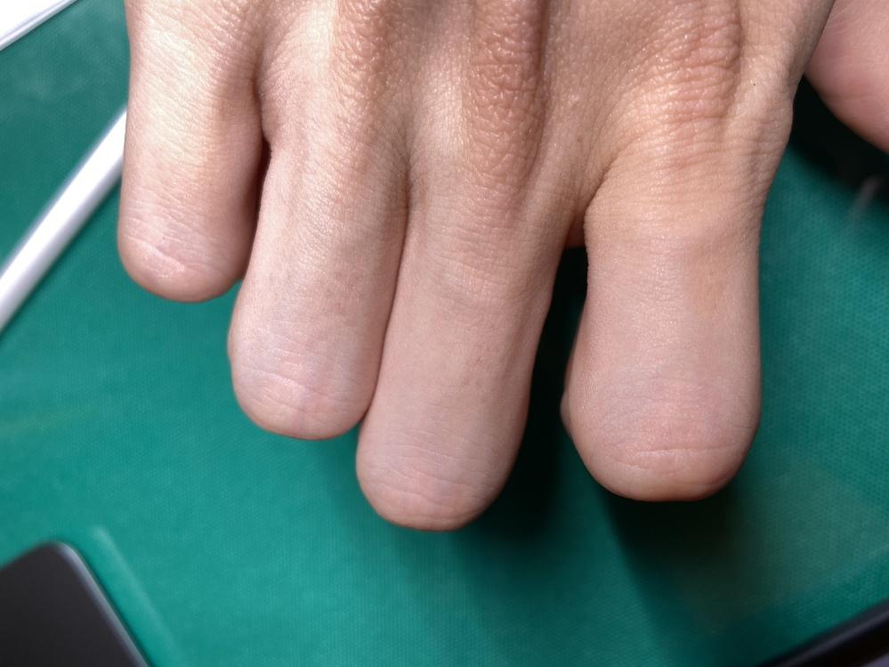 指の毛を抜いた後に写真のような跡が残るのですが消す方法は無いですか