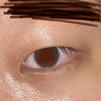 写真のように瞼が重く厚いです(特に目頭) このような目でも埋没2点どめもしくは3点どめで二重にすることは可能なのでしょうか。肌が汚くて申し訳ございません。