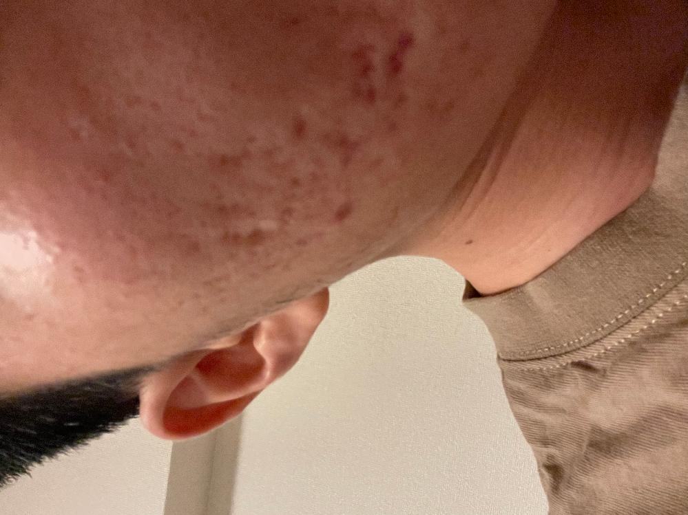 この肌凄い気になりますか? 僕はとても嫌で、自分に自信が持てなく マスクを外すのが苦手です。 3年前ぐらいからひどくなりました。 今からでも自分でできる対処方お願いします!