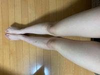 高3女子です。 この脚って汚い方に入りますか...?