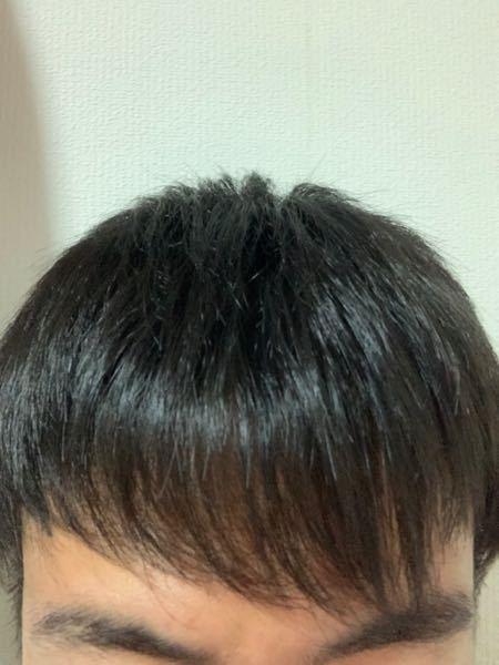 高校3年の男子高校生です。 この前髪は薄いでしょうか?? また、薄かったら対策など教えて頂けますか?