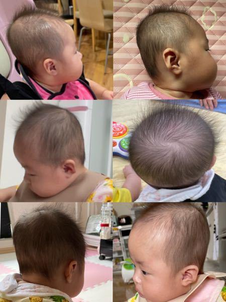 生後5ヶ月の娘がいます! 絶壁頭目立ちますでしょうか?(><) ドーナツ枕も使い、寝返りもするようになって だいぶマシになったんですが、もうこれ以上治らないですかね(><)??