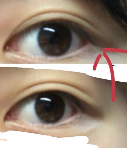 二重幅の狭め方を教えて頂きたいです。 (目のアップの写真あるので閲覧注意かも 私は元々画像の下半分の目で、二重ではあるけどぱっちり粘膜が見えるような私好みの二重ではないので上半分のような目にしたいです。 両面アイテープだと上のような理想の二重幅になるのですが、メイクがとってもしずらい、皮膚が伸びそう、下向いた時に結構バレる、という欠点(?)がどうしても気になってしまいます。 なので片面テープでやりたいのですが片面だと元よりも狭い位置に貼った所でただ二重にテープういちゃってるよって感じになってしまいます、 どなたか片面テープで二重幅狭める裏技的な方法知ってるよ!って人がいたら教えて貰いたいですm(_ _)m よろしくお願いします。