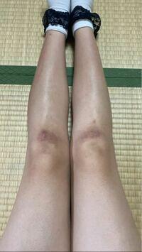 膝黒くて汚いです 何故こんな汚くなりますか? 膝の黒ずみを取る方法を教えてください