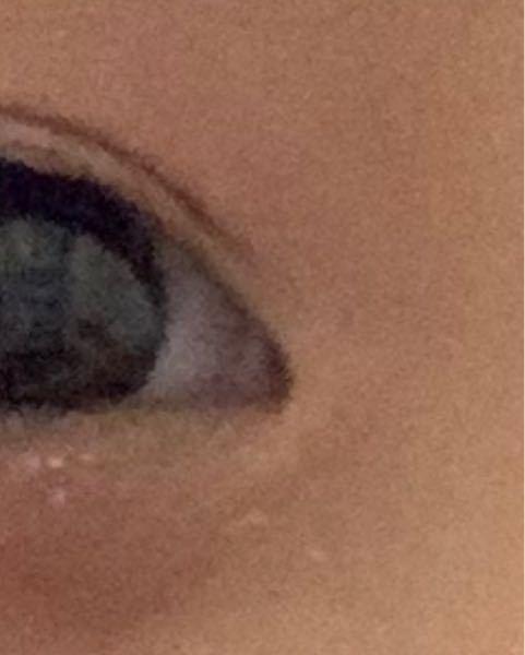 目のドアップ失礼します。 目頭部分は蒙古襞ですよね?目頭切開した場合マシにはなりますか?