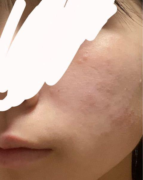 化粧をすると次の日にほぼいっつも肌が荒れてしまいます。写真では分かりにくいですが、少し赤くなっていて、頬が熱く感じます。いっつも洗顔などで落としているつもりなのですが、アトピーや敏感肌のためか荒れてし まいます。肌のスキンケアめんどくさくてを全くしないのですが、スキンケアをした方がいいでしょうか??またアトピー、敏感肌に良いスキンケア商品など教えていただきたいです。