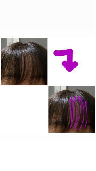 縮毛矯正についてお聞きしたいです。 約3週間前に初めて縮毛矯正を当てに行きました。 すごくくせ毛で卒アルの写真を撮るために当てたのですが、正直めっちゃ気に入ってたんですねストレートになってから(笑) なんですけど、当てて1週間くらいしてから画像右部分の前髪と後ろがうねり出してしまい、当てて1週間ということで無料でかけ直してもらいました。 それからずっと普通に過ごしてたのですが、最近になって次は真ん中が画像のようにうねり出しました。 ここはかけ直してもらってないとこです。 (画像2枚同じ画像ですが分かりやすくするためにうねっている所をペンでなぞっています。) 正直、卒アルの為だけにかけに行ったのでどこでもいいという考えで下手な美容院へ行ってしまいました。 (学生さんなどが多いため。初めてだし卒アルのためだけだし急に縮毛当てようとなったので) これって、前髪が伸びたからこうなってるの? それとも矯正がとれてきてるの? と思っています。 これはどっちなんでしょうか。。