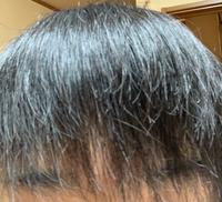 この髪質でブリーチしたらどうなりますか? パーマ1回、その後2ヶ月ほど開けて縮毛矯正1回、今は縮毛矯正から1ヶ月ほど経っていますが、この髪質でブリーチをしたらさらに髪がチリチリになったりちぎれるようなことはありますか?