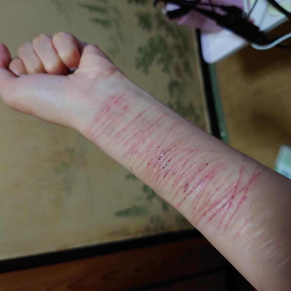 【⠀自傷画像あり、閲覧注意です】 A型作業に通うことになったのですが、親が離婚することになり家庭環境が前より急激に悪化してストレスの限界でアムカをしてしまいました。 長袖は暑いので半袖じゃないときついのに、腕が傷だらけです。 これはクビになってしまうのでしょうか? 5年くらい鬱で仕事ができず、やっとやる気出たのにどうしたらいいのでしょうか?