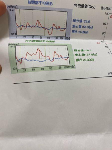 今日メンタルクリニックで光トポグラフィー検査を受けてきたのですが、波形で診断して頂いたのですが、双極性障害かもしれないと言われました。この波形は双極性障害の方によくあるものなんですか? 分からないので教えて頂きたいです。