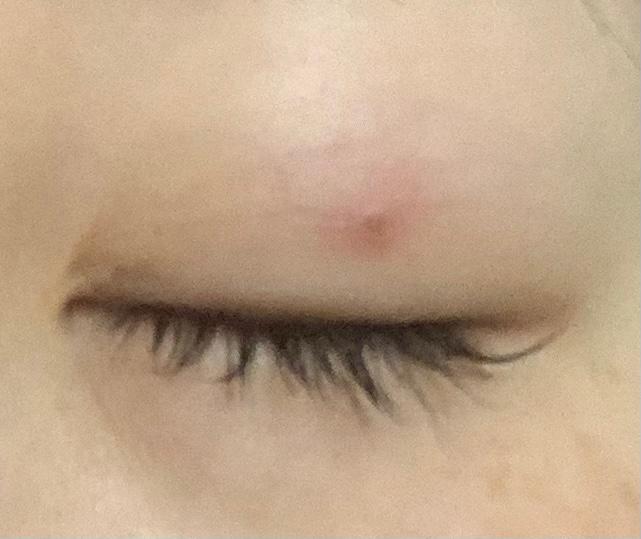 1年ほど前に埋没2点留めで二重にしましたが、 片目だけ玉留めのような跡が消えません。 (画像わかりずらくてすみません) 目を瞑らないと目立たないし二重に支障もないので放置してしまっていたのですが、 病院に行った方がいいでしょうか。