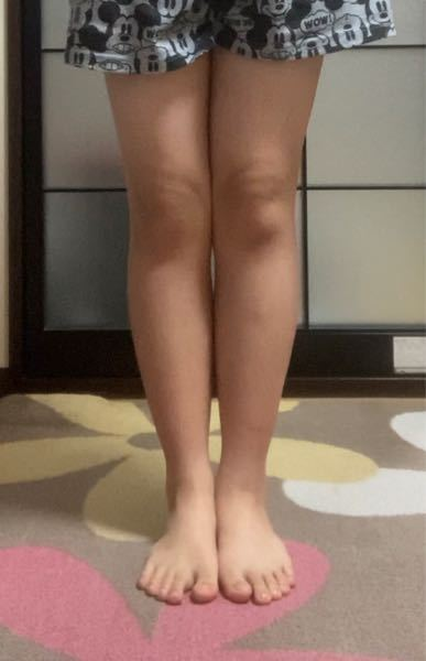 私の足は写真の通り太いんですけどこの足で夏に ショートパンツを履いても大丈夫でしょうか? 1年ほど前,クラスの男子に「足太すぎ」と言われたのがトラウマになっており,足を出すのを躊躇してしまいます。 身長は163cmでふくらはぎは36cmほどで、 この足でもダイエットで少しは細くなった方です。 それと脚やせに効果的なことや,体重を落とすのに効果的なことを教えて頂きたいです。