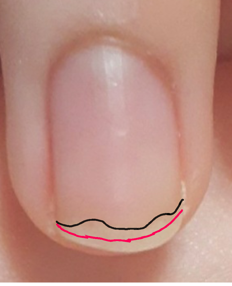 中指の爪のピンクのところが写真のようないびつな形で爪の形を整えても理想通りに出来ません。 なにをしたらピンクのところが伸びますか? ピンクで書かれた線は爪のピンクの理想の形で、黒は現時点での爪...