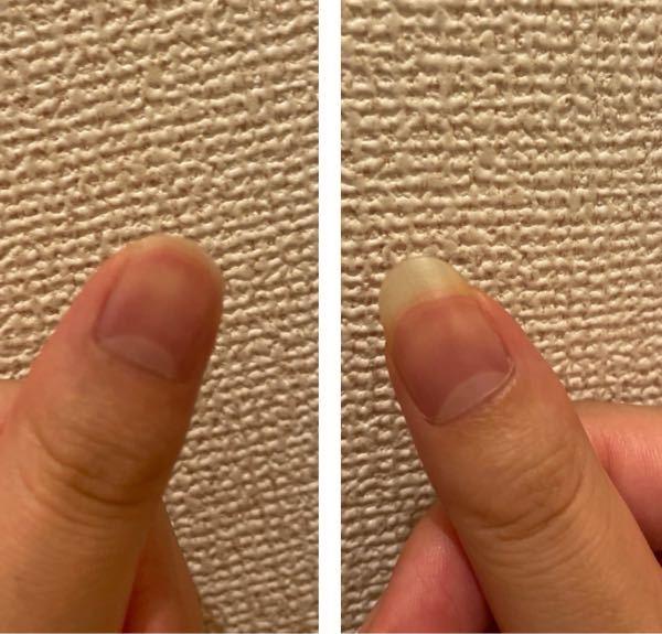 ネイルサロンに初めて行くのですが、写真のように左爪が欠けてしまいました。右爪のように長さを出すなどして、綺麗にネイルしてくれますか?