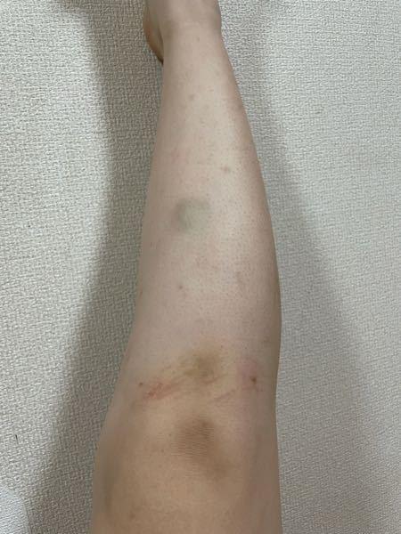 【画像汚いです】女子高生です。脚が壊滅的に汚いです。お目汚し申し訳ないです。私は小さい頃から虫刺され等の小さな跡が残りやすく、気づいたらこんな足になってしまいました。毛穴ももちろん気になりますが...