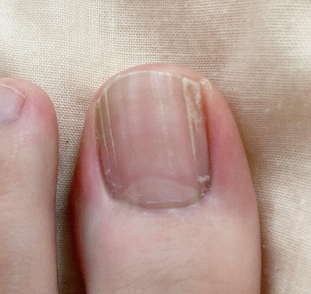 足の親指の爪が3、4年前ぐらいからずっとこんな感じなのですが、どうすれば治りますか?切実に治したい、綺麗にしたいです!!(;;)誰がお助けを
