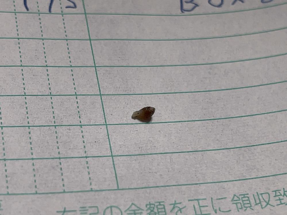 体からこんなものが出てきました。これ何ですか? 黒くて丸い感じのが埋め込まれてました。場所は陰毛周辺です