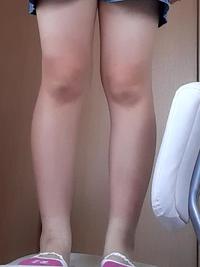 この脚ってどれくらいのレベルですか?? 1.太すぎ 2.ちょっと太い 3.ふつう   Yahoo!知恵袋
