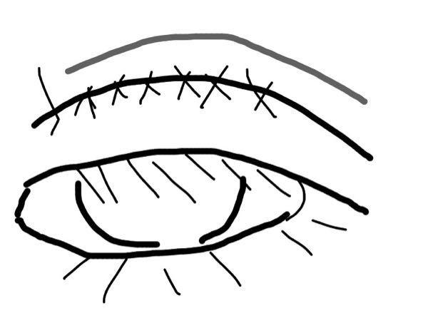 全切開を先日したのですが、どうも、片方の目の繰り込みが浅くて正面を見ようとしたりすると塗ってある線の上の方が薄い線のようになります。食い込むというか盛り上がる? 失敗なのでしょうか? ちなみに眼...