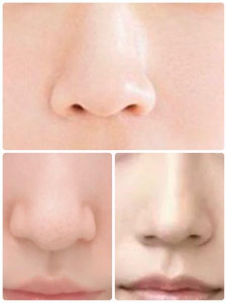 左下の鼻を、上や右下の鼻に近づけるためにはどのような施術が良いのでしょうか?