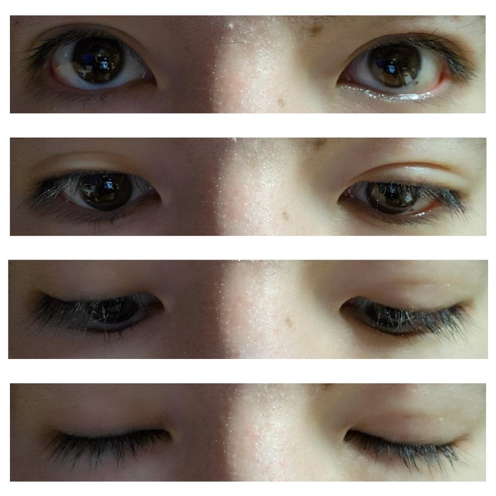 二重埋没手術のダウンタイムについて 湘南美容外科でフォーエバー二重術を受けて約32日経過しました。 右目のみ(写真でも右側の目です)施術を受けたのですが、力強く目を瞑ったり、力強く目を擦ること...