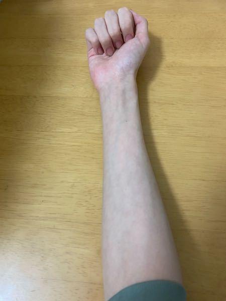 中3の男です 私の前腕は細すぎ・細い・普通のどれですか? 生まれつき酷く骨細で指も長くマルファン症候群気味なのがコンプレックスで太鼓(音ゲー)や前腕の筋トレをしていますが少し太くなったような気が...