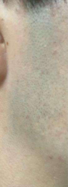 高校生で剃った後のもみあげがこんなに青いのはヤバいでしょうか?
