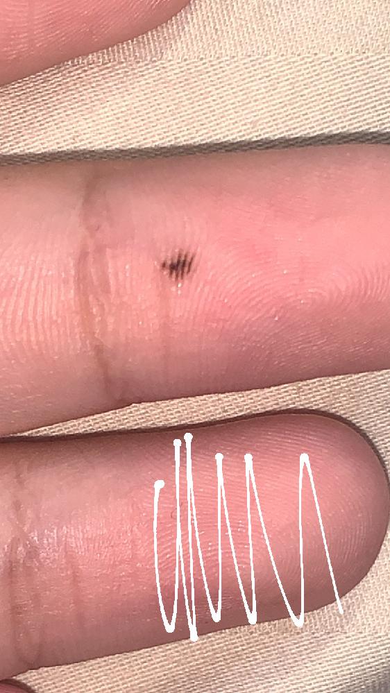 見えにくくてすみません。手の中指のところにほくろがあって指紋に沿ってる感じで皮膚がんではないかと思い質問しました。中学三年生です。あまり皮膚科に行く時間がなく、、。 このほくろは覚えてる限り3年...