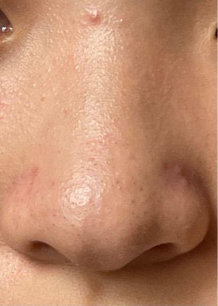 鼻のこのような黒ずみってどうしたら治りますか? DUOとかで治るんですか? すごく悩んでます、、