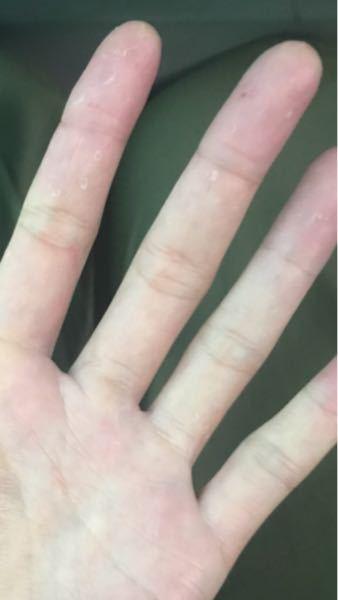 手のいろいろなところが皮むけしているのですが、 これは水虫でしょうか?去年まではありませんでした。 なお、足の水虫は治療開始したところです。