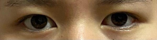 これはキリッとした目ですか?可愛げ無いですよね? 後、左右非対称に見えますよね? 痩せたらマシになりますか?