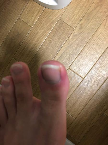 このように爪が皮膚にくい込んで赤くなってきたらどう対処するのが良いのでしょうか?踏み込む時に痛みます。ちなみに全体赤くなっていますが、くい込んでいるのは右側だけです。