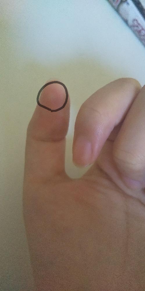 下の画像で、親指が痒くぷくっと腫れています。これは何ですか?