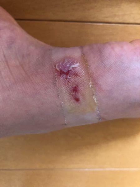 靴擦れ 怪我 写真あり サンダルを履いて長時間歩いたら靴擦れ?みたいなことになってしまいました。皮が剥けて痛いのでとりあえず絆創膏を貼っていたのですが、取るときに皮もついてきちゃって(皮が皮膚に...