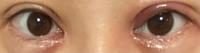 1ヶ月ほど前に二重全切開をしたのですが、昨日突然切開部分から片目に小さな白いシコリのようなものができてしまい治るか不安です。原因などわかる方いましたらご回答お願い致します。