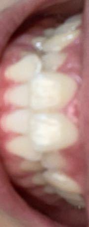 キレイライン矯正って本当に月4万から始められますか? 私の歯並びはこれなのですが、できるでしょ...