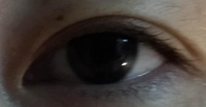 整形に詳しい方。 イケメンぽくなりたいのですが、この目は整形するならどう言うのがおすすめでしょうか?