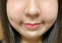 至急ですこの写真の鼻は団子鼻ですよね、また太っていますか?(汗)めちゃブスですよね、