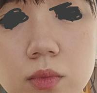 鼻の整形をしたいです 写真を見てわかる通り、おおきくて左右非対称な小鼻、鼻筋が全くないことがコンプレックスです 整形するとしたら鼻中隔延長、小鼻縮小とかでしょうか? いくらくらいかかりますかね?  回答よろしくお願いします