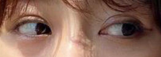この目は何も手を加えられていない天然二重だと思いますか?