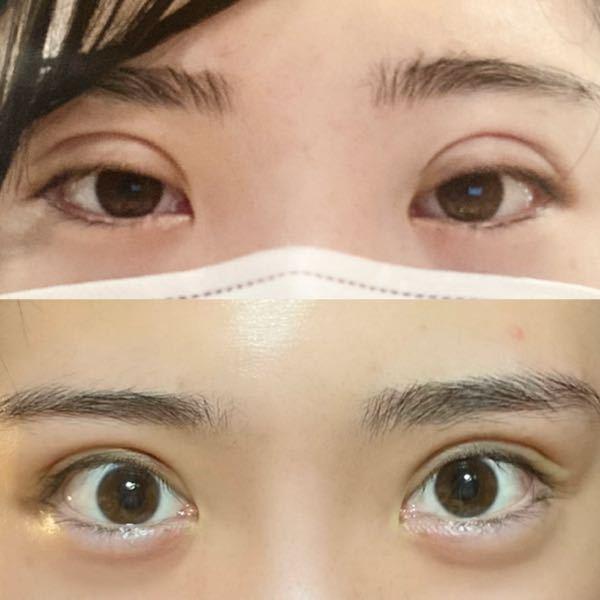 ダウンタイムの経過について クイックコスメティークダブルを施術し、10日が経過しました。 術後はものすごく腫れて目を閉じたときの二重幅が1センチあり、目をしっかり開けられませんでした。 写真は...