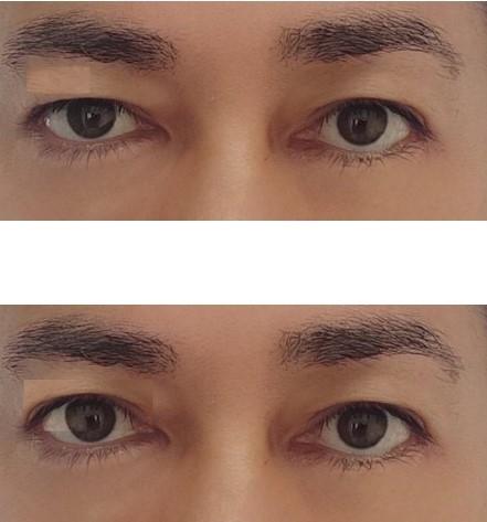 向かって右側の目の三白眼(黒目と下まぶたの間にできる白目の隙間)が気になっています。上まぶたの開きにも左右差があり、画像を加工し下の画像では上まぶたの開きを左右同じにしてみました。 右側の目の三...