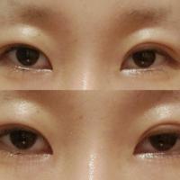 私の目は眼瞼下垂でしょうか? 上の画像は、無理やり目を開けた目で(日常生活はこんな感じで目を開いてます) 下の画像は、1番楽に目を開いた時の画像です。  埋没して1週間ほどなので若干腫れはあるかと思いますが、美容整形外科の医者に手術前に眼瞼下垂かも、と言われましたが、そうなのでしょうか?  回答よろしくお願いします。