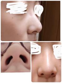 美容整形で鼻の手術を考えています。 小鼻縮小とだんご鼻解消をしたいのですが、 3D形成をしたらだんご鼻は解消されるのでしょうか。高さはありますが、鼻先が丸いです。 やはり軟骨移植や鼻中隔延長もセットでやらないと、だんご鼻は解消されないのでしょうか…