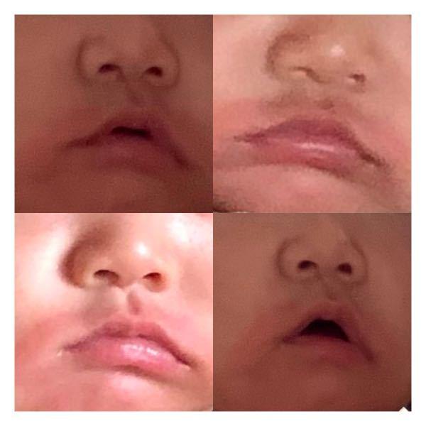 【写真あり】 息子の口角がいつも下がってる気がします。 息子は生後5ヶ月です。 どの写真を見返しても下がってるものばかり。 特に左側が下がってる気がします。 笑ってはくれますが、通常時はいつも下がってて横広?な気がします。 甥(現在2歳)の0歳頃の写真を見返しても 口の横幅はこんなに広くないし、 真顔の時も口角が上がってるというか、真っ直ぐめでした。どの写真を見ても。 息子がこういう顔ってだけでしょうか? 片方だけ下がってるのも気になります。 辛口回答でも構いません。 よろしくお願いします。