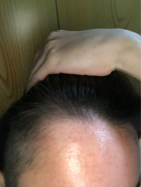 最近前髪が割れてきてます。前髪を上げた際これは禿げてきてるのではと思いました。これはAGAというものでしょうか?またそのようならどのような病院に行った方がいいでしょうか?